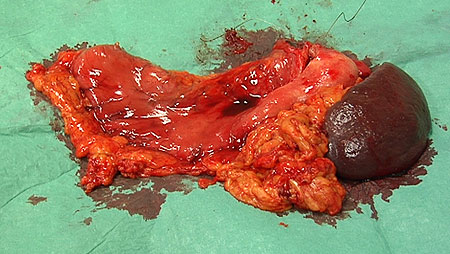 The surgical specimen with stomach (left) and spleen (right).