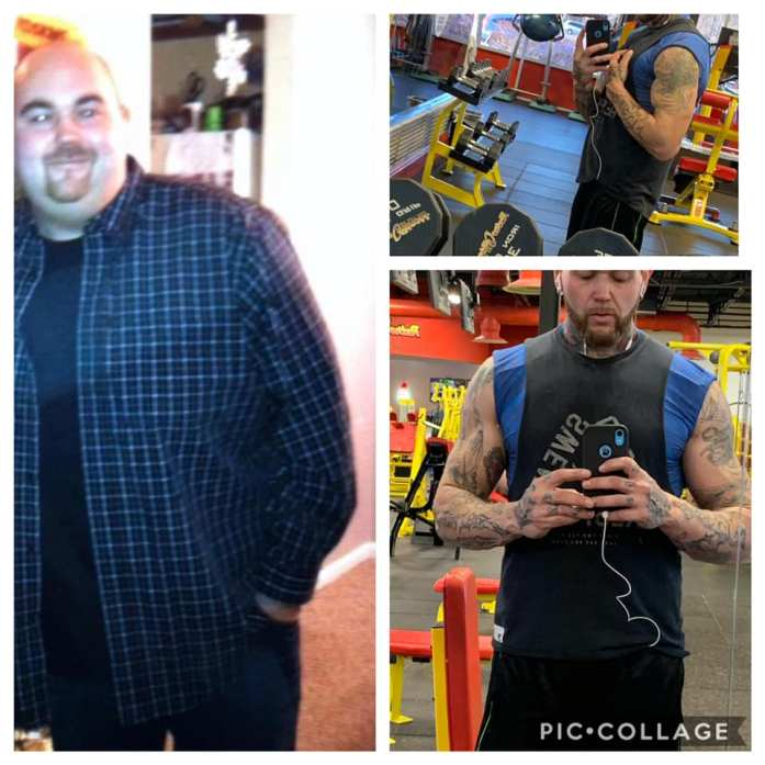 Ernie lost 125 pounds after gastric sleeve weight loss surgery