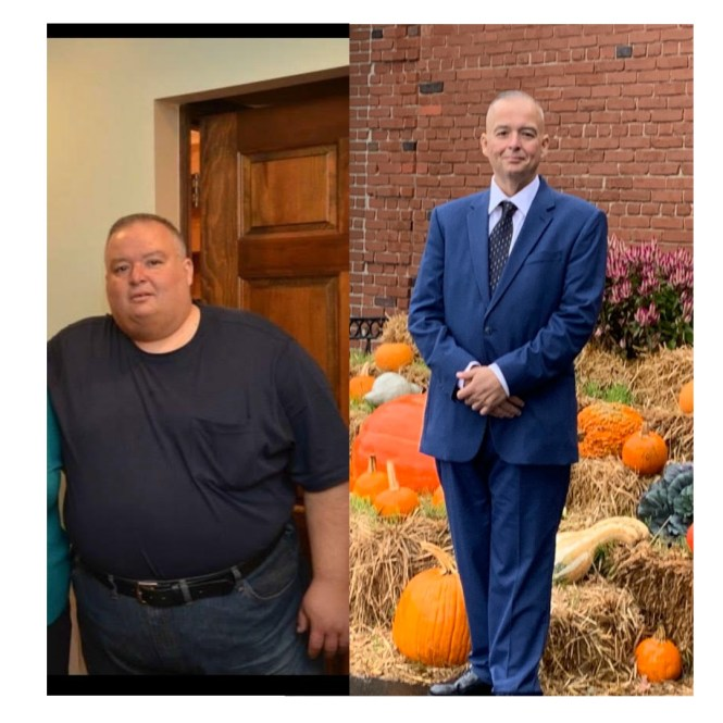 John has duodenal switch surgery in New Jersey performed by Dr. Adeyeri