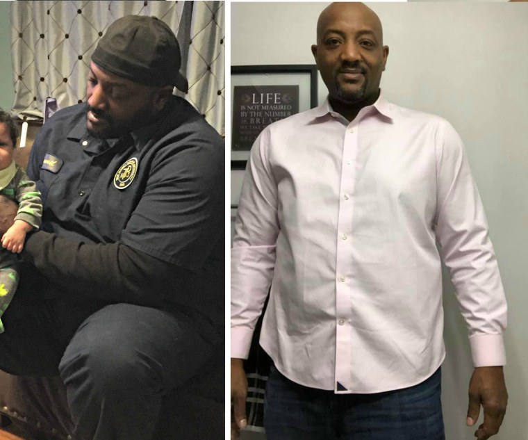 Jamil had gastric sleeve weight loss surgery and lost 135 pounds