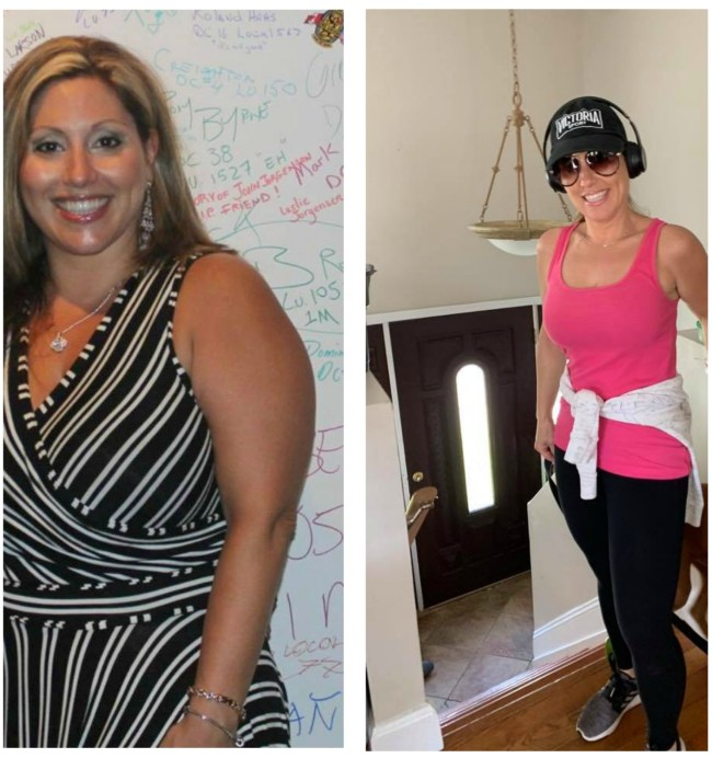 gastric sleeve weight loss surgery before and after