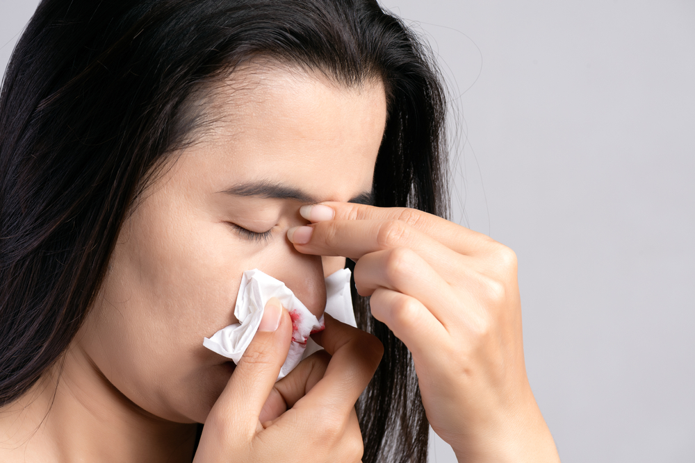 young woman suffering from nose bleeding and using tissue paper for stop bleeding.