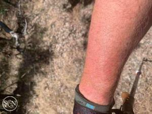 Getting a sunburn on the PCT