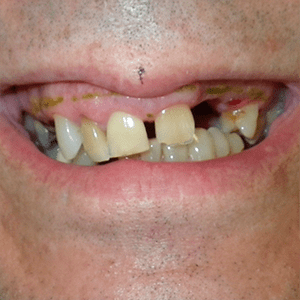 c-1-Snap-in-Dentures-dentist-cancun-affordable