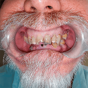 snaps2-2snap-in-dentures-implants-cancun-1