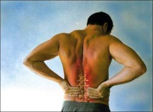 DISC HERNIATION chronic back pain doctor St george utah