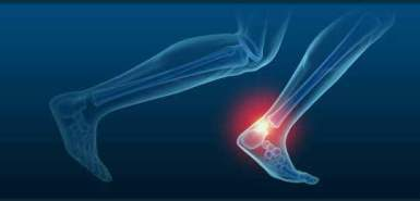 achilles pain doctor saint george utah 84790