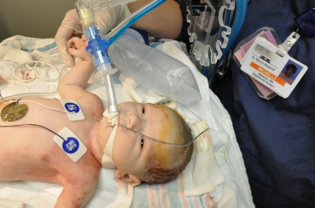 A listless baby, near death, as doctors work on him.