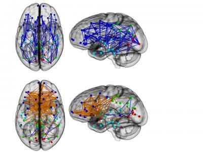 Unterschiedliche Verbindungen bei Männern (oben) und Frauen. Bild: Ragini Verma/PNAS