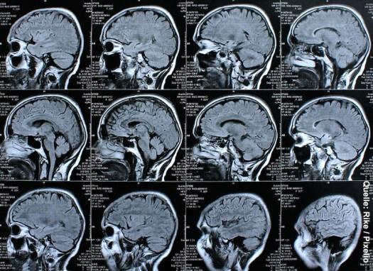 Ein schwarz-weiß Bild von Hirnscans