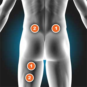 Tens And Ems Expert Electrode Placement Chart Flextone