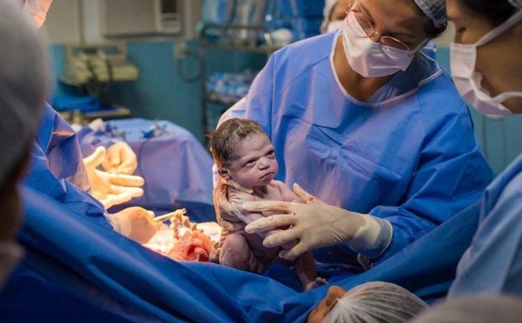 Bebelușul care a devenit viral! Ce le-a făcut medicilor imediat după naștere