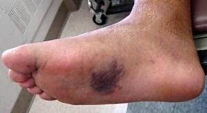 Lisfranc foot