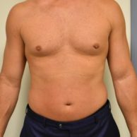 BodyFX (Cellulite Reduction)