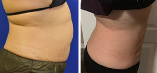 Liposuction with Bodytite Before and After