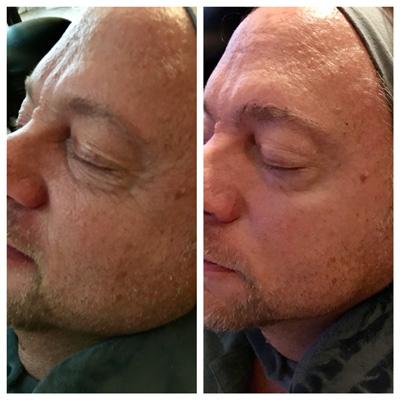 Men's Med Spa Facial