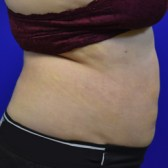 Liposuction 1 Week After Right Side