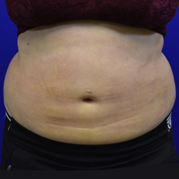 Liposuction 1 Week After Front