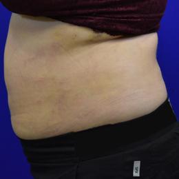 Liposuction 1 Week After Left Side