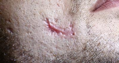 Co2 Facial Rejuvenation Before Patient #2