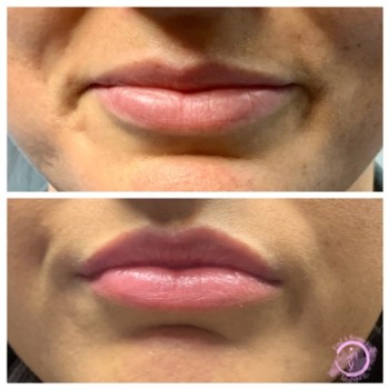 Botox Lip Flip - Upper Lip Before and After