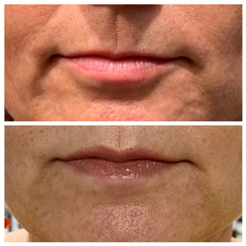 Botox Lip Flip - Upper Lip Before and After Results