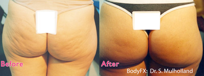BodyFX - Before and After