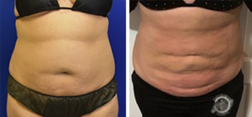 Liposuction Before and After Front - Patient #3