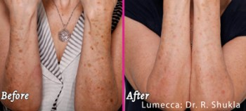 Lumecca Arms - Before and After