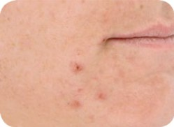 Acne LED Light Therapy Before