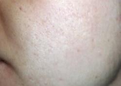 Acne Scarring After - Sublative Rejuvenation - 3