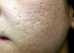 Acne Scarring Before - Sublative Rejuvenation - 3