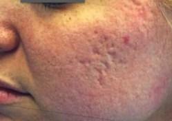 Acne Scarring Before - Sublative Rejuvenation