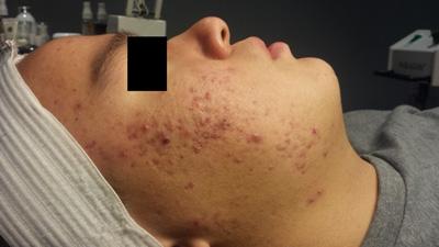 Celluma Acne Before