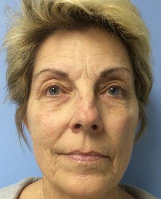 Celluma - Anti-aging Before
