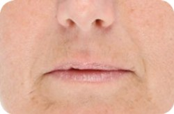 Wrinkles (Anti-Aging) Before - LED Light Therapy