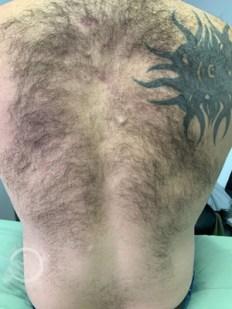 Laser Hair Removal Back Men Before