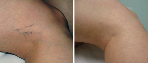 Leg Veins Removal Before and After - GentleMax Pro