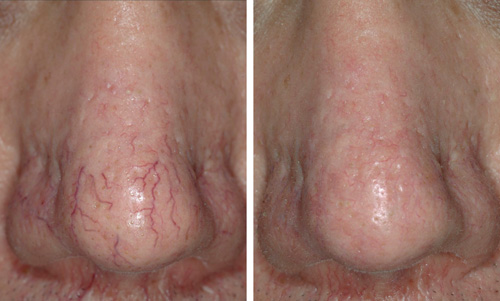Nose Vessels Before and After - GentleMax Pro