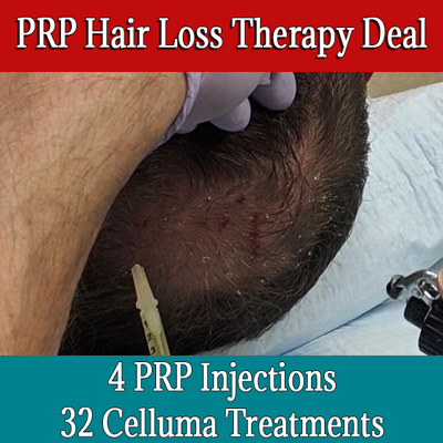 PRP Hair Loss Therapy Deal