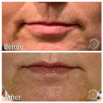 Botox Lip Flip - Upper Lip 2