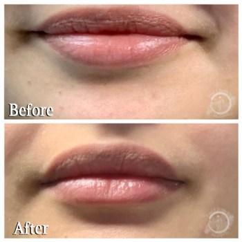 Botox Upper Lip - Lower Lip