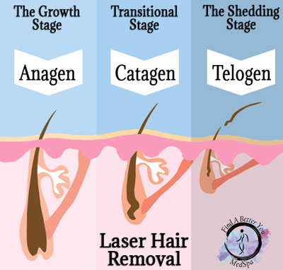 3 Stages of Laser Hair Removal