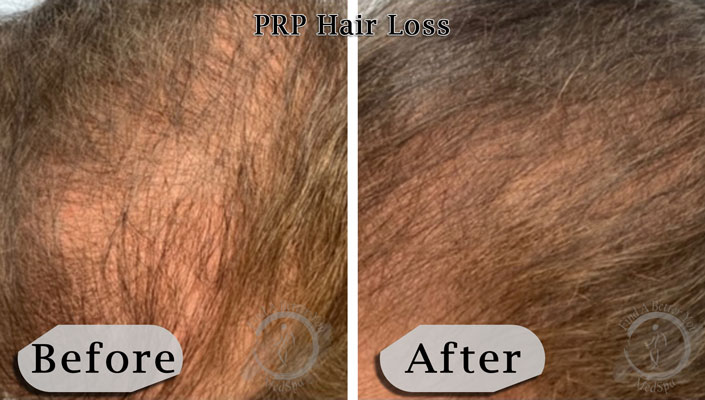 PRP Hair Loss Therapy Before and After - Side
