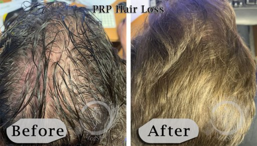 PRP Hair Loss Therapy Before and After