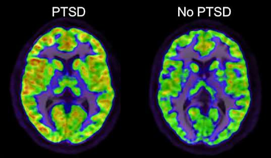 This is a comparison of two brain scans, one individual with PTSD (left) and the other without (right). | Courtesy of MedicalXpress.