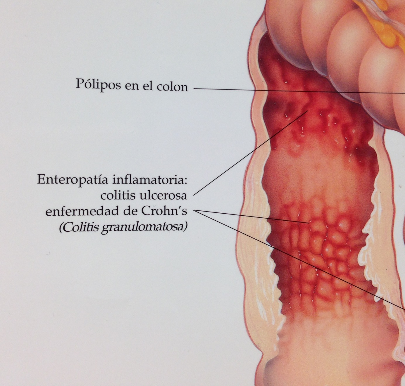 How do you say \'Crohn\'s\' in Spanish? | The Stolen Colon | ostomy ibd ...