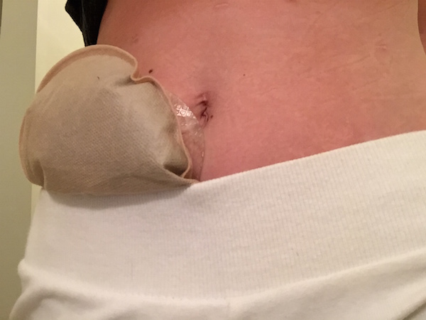 Out of the Bag: Passing gas with an ostomy