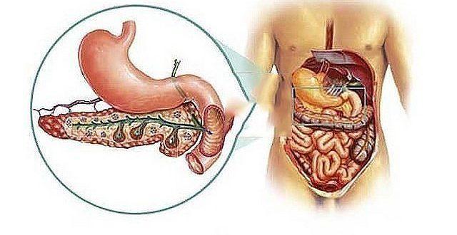 Este posibil să eliminați întregul pancreas? - Tratament