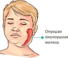 Воспаление слюнной железы у ребенка описание симптомов